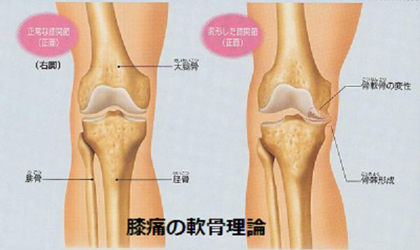 膝痛の原因とされる軟骨理論