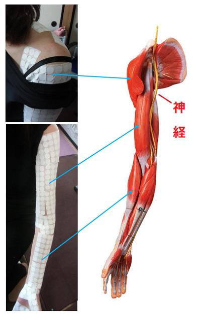 肩、首、腕の痛みの原因