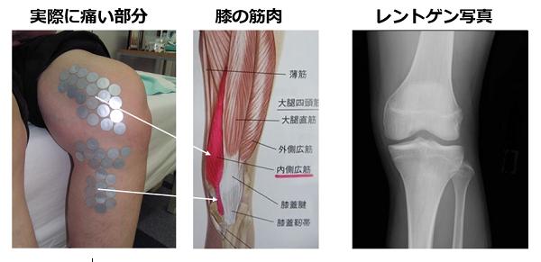 実際に膝の痛い所を調べた写真