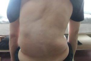 側弯症の原因