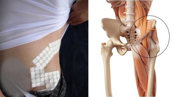 腰とお腹が痛いの解消代替医療