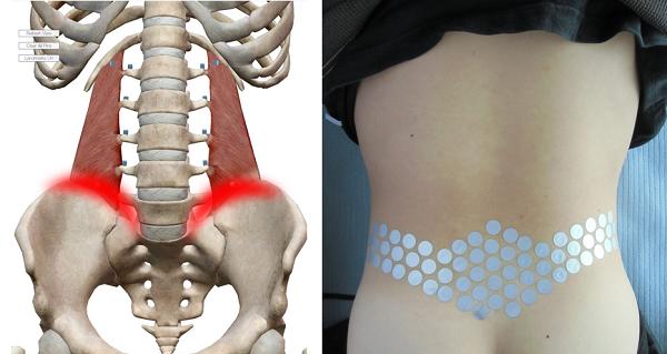 骨盤に沿った腰の痛み
