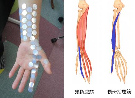人差し指の付け根や関節が痛いの原因