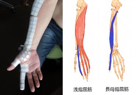 人差し指の付け根や関節が痛いの解消代替医療