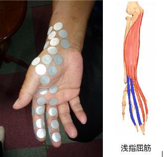 奈や指の付け根や関節が痛いの原因