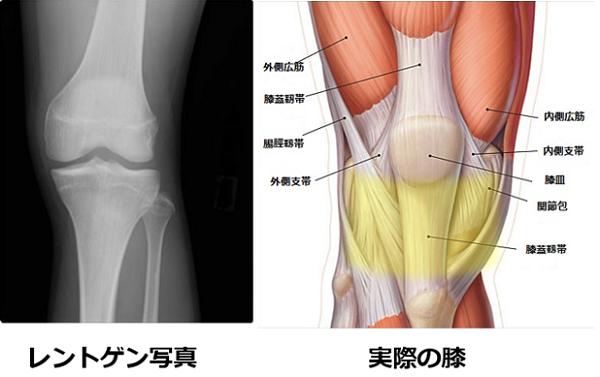レントゲンと実際膝の違い