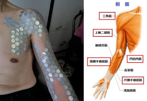 肘を曲げると痛い状態事例