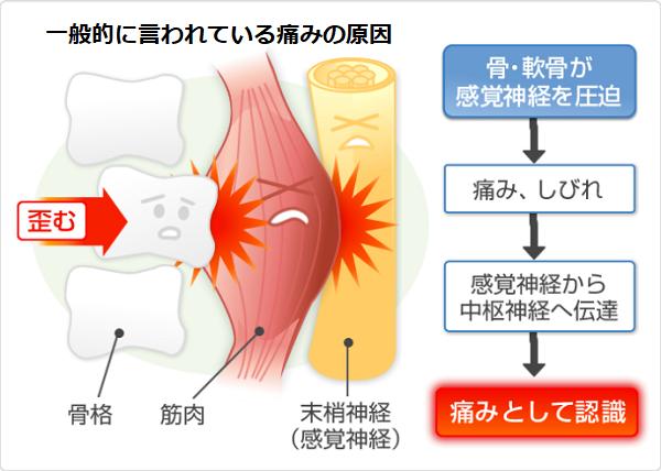 整形外科で説明する痛みの原因