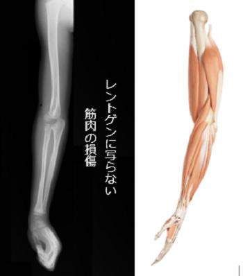 肘が痛いの原因1