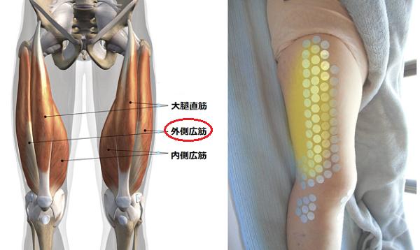 膝の外側広筋が痛んでいる状態