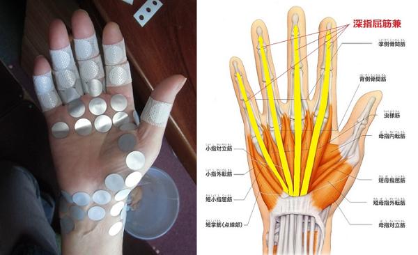 手の平が痛い、こわばるの原因