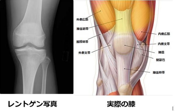膝の中央広筋が痛んでいる状態