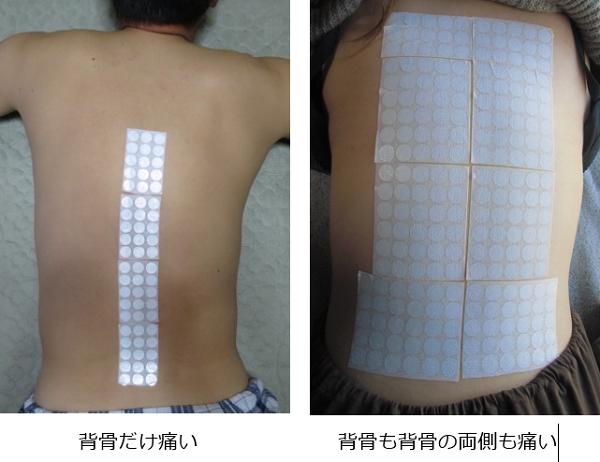 背骨が痛いの代替医療
