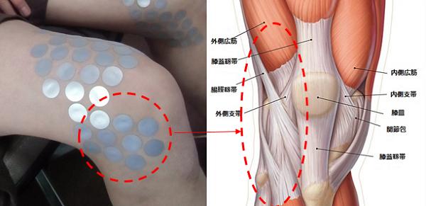 膝外側の痛み解消代替医療例