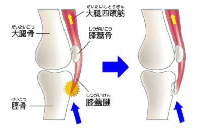 整形外科で説明するオスグッドの原因