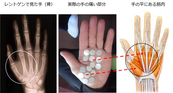 レントゲンでは分らない指の痛みの原因