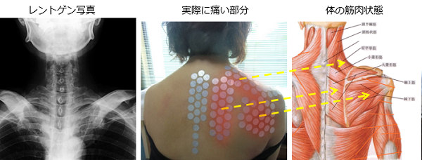 レントゲンでは分らない肩甲骨の痛みの原因
