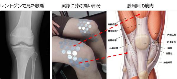 レントゲンでは分らない膝の痛みの原因