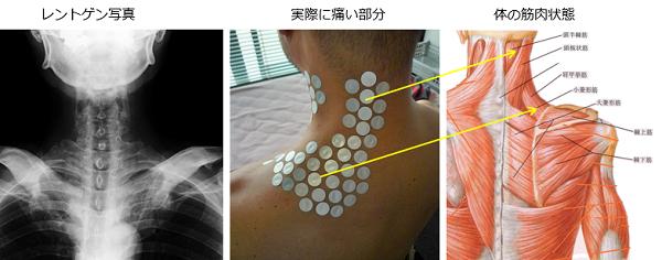 首の痛みの原因とレントゲン映像