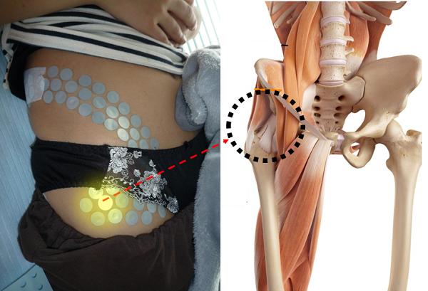 股関節の外側が痛い原因