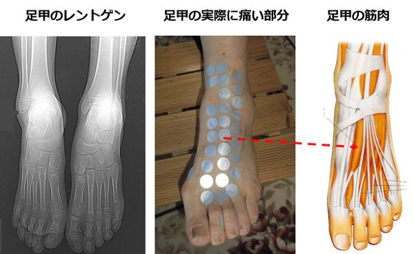 レントゲンには写らない足の痛みの原因